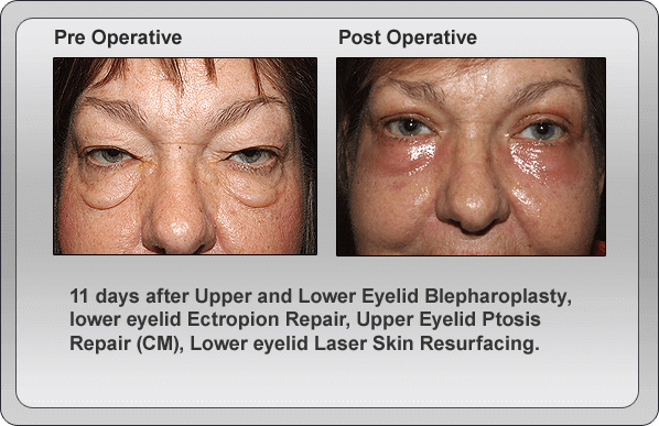 blepharoplasty-lower-peel-eyelids-1 |Lower Blepharoplasty Recovery Photos