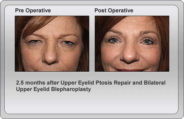 Blepharoplasty Pre Operative & Post Operative Comparison 2