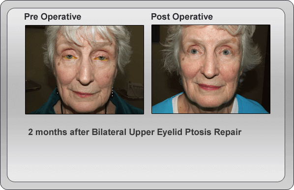 Pre Operative & Post Operative Ptosis Treatment Comparison 2